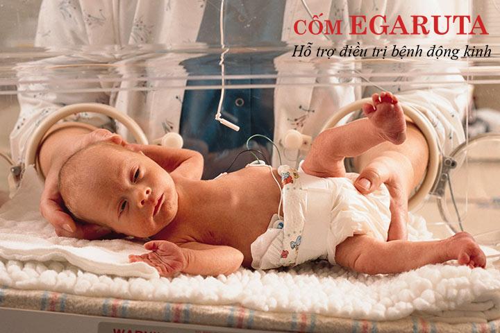 Bệnh động kinh ở trẻ sơ sinh thường khó nhận biết